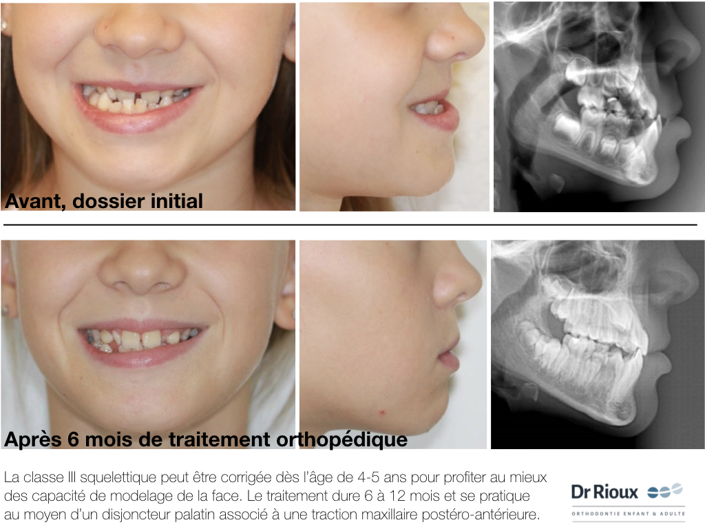 orthodontie fonctionnelle